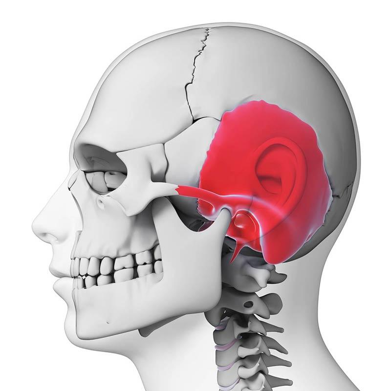 Três razões pelas quais o Implante de Condução Óssea BONEBRIDGE é melhor