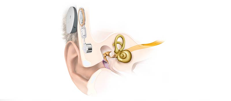 3 Reasons Why the BONEBRIDGE Bone Conduction Implant is Better