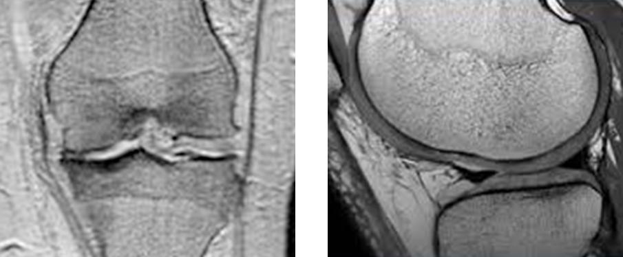 Teknologi SYNCHRONY Mendukung Prosedur MRI pada Pengguna Implan Rumah Siput