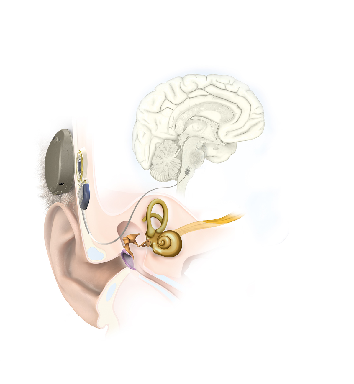 Auditory Brainstem Implant Illustration