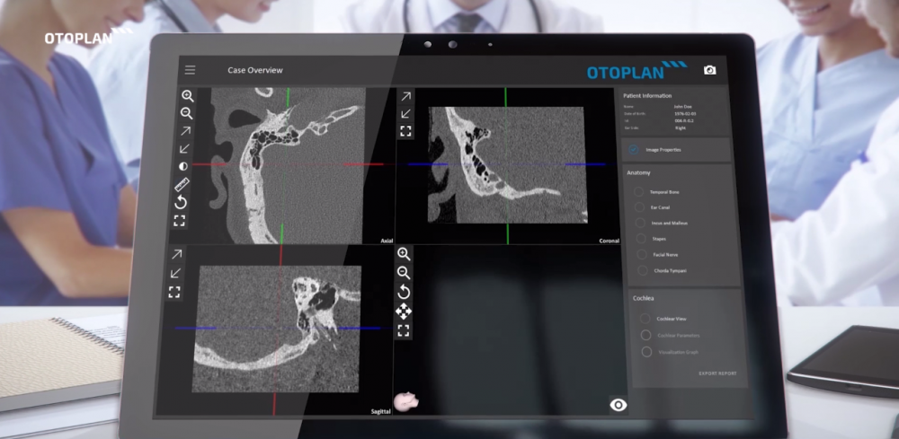 OTOPLAN otologic surgery