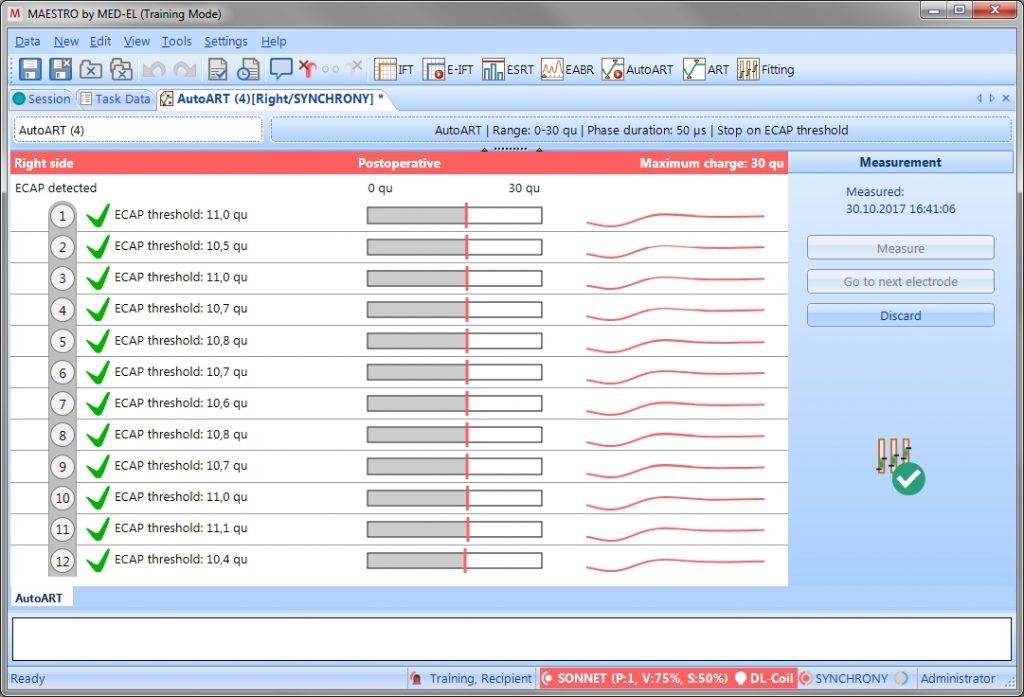AutoART & MAESTRO 7 0: Fast, Intuitive, Reliable ECAP Measurement