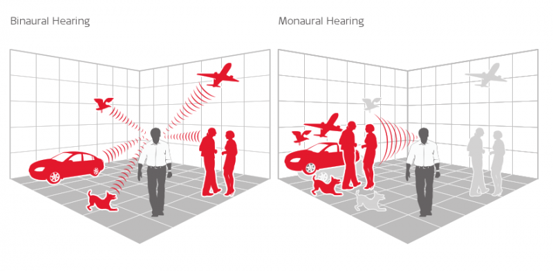 Binaural hearing with single-sided deafness
