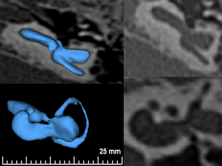 Cochlear Hypoplasia