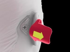 ADHEAR positioning tool