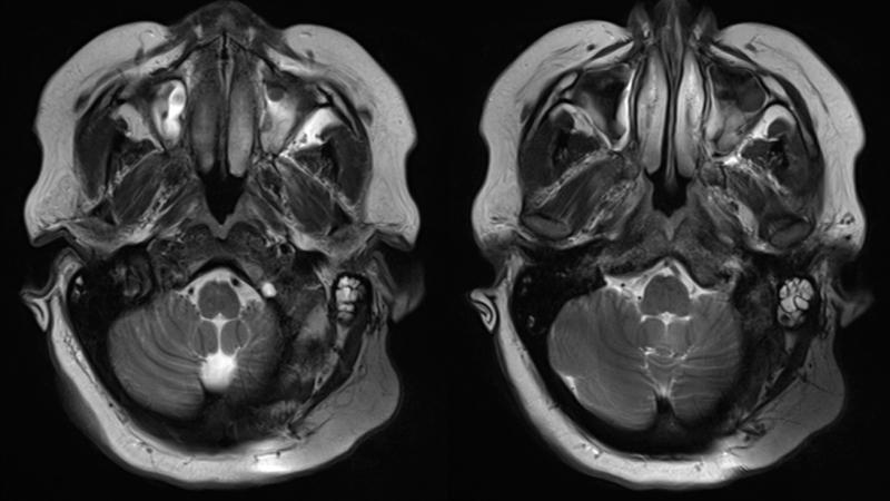 MRI head scans SYNCHRONY cochlear implant 3 Tesla