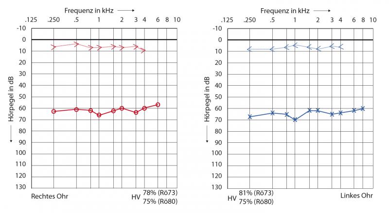 Conductive hearing loss audiogram bilateral VIBRANT SOUNDBRIDGE Middle Ear Implants