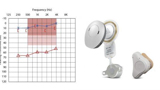 Conductive hearing loss air conduct vs bone conduction air-bone gap
