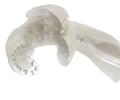 Umknicken perimodiolarer CI-Elektroden in der Cochlea – Ein Forschungsupdate