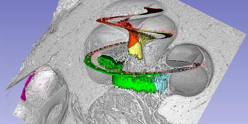 Spiral ganglion cochlea