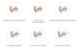 Arten von Hörverlust